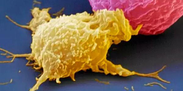 células-NK