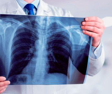 Nota de Corte Radiologia