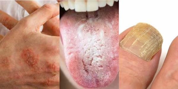 doenças fungos - Exercícios sobre Fungos