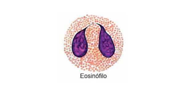 eosinófilo