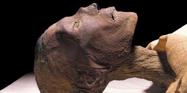O-que-é-varíola-múmia-com-varíola
