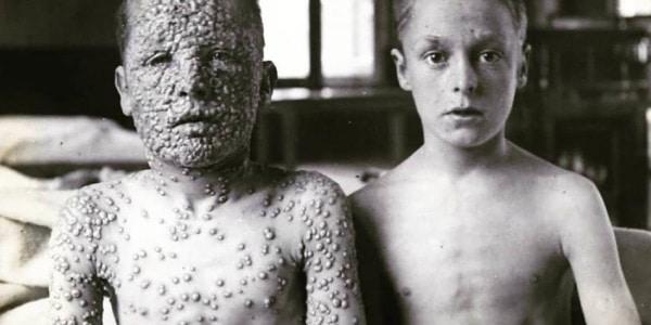 o-que-é-varíola