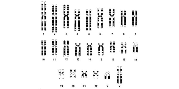 What-are-chromosomes-autosomes-examination-of-karyotype-human-complete-male