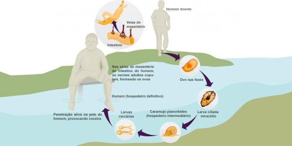 Ciclo da Esquistossomose causada por platelminto