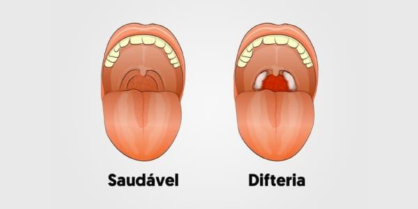 imagem-de-boca-saudável-e-boca-com-sintomas-de-difeteria-placas-branco-acinzentadas-nas-amigdalas