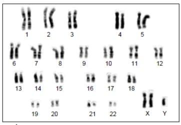 Analise-o-cariótipo-abaixo.-É-possível-concluir-que-os-portadores-da-síndrome-mostrada-apresentam-fenotipicamente-dentre-outras-características