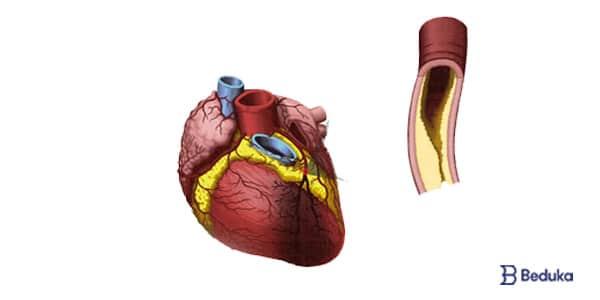 como o infarto acontece - aterosclerose placas de gordura entupindo arteria que irriga o miocardio